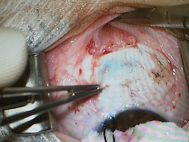 Muscle repositionné en recul de 5 mm par rapport à son insertion initiale