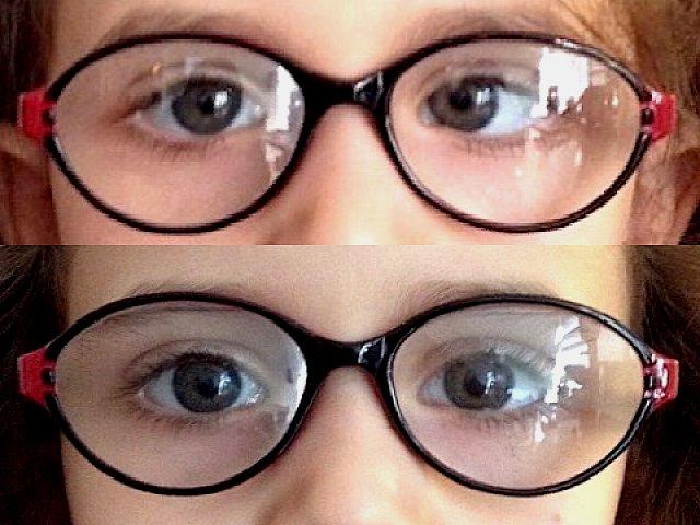 Strabisme convergent de l'œil gauche, avant et après chirurgie