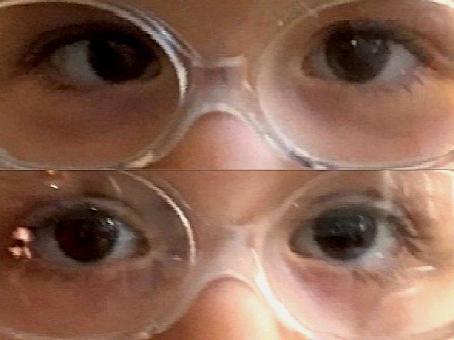 Strabisme convergent de l'œil droit avant et après chirurgie
