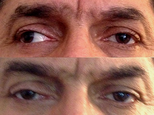 Strabisme divergent paralytique de l'œil droit, avant et après chirurgie