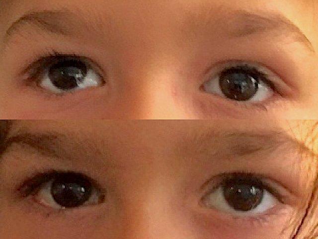 Strabisme vertical vers le haut de l'œil droit, avant et après chirurgie