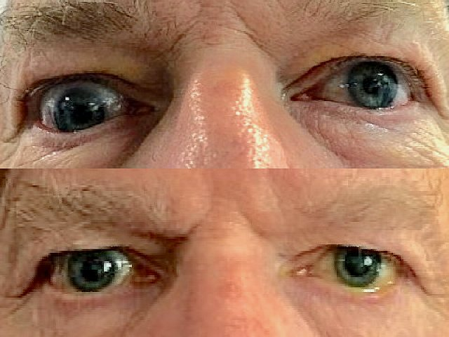 Strabisme vertical vers le bas de l'œil droit, avant et après chirurgie
