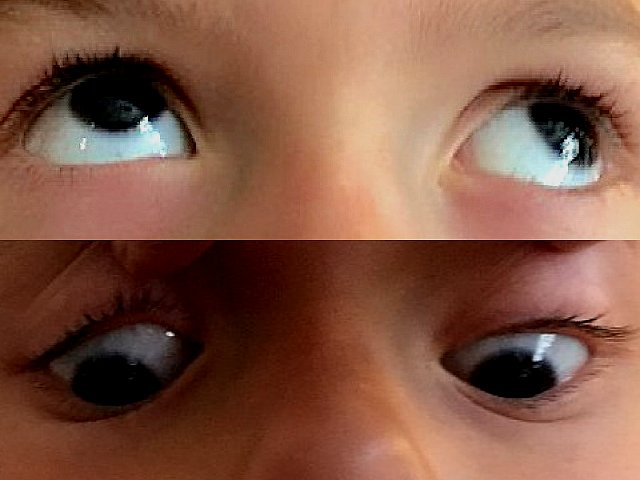 Syndrome alphabétique V, divergence regard en haut et convergence regard en bas