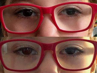 Strabisme divergent de l'œil gauche, avant et après chirurgie © Centre Monticelli-Paradis d'Ophtalmologie