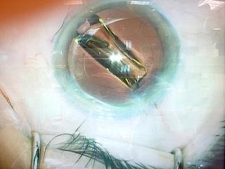 Implant intraoculaire injecté dans l'œil © Centre Monticelli-Paradis d'Ophtalmologie