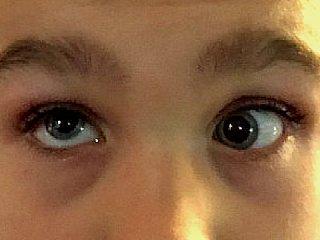 Syndrome de Brown à l'œil gauche : l'œil gauche est bloqué et ne peut pas monter dans le regard en haut à droite et en dedans © Centre Monticelli-Paradis d'Ophtalmologie