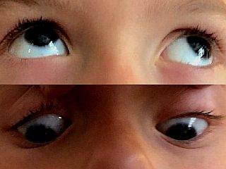 Syndrome alphabétique V, divergence regard en haut et convergence regard en bas © Centre Monticelli-Paradis d'Ophtalmologie